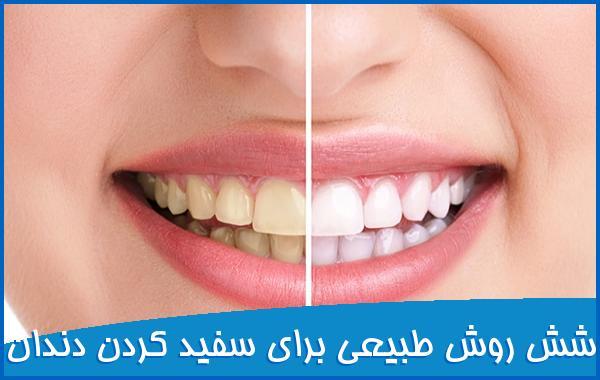 شش روش طبیعی برای سفید کردن دندان ها